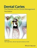 Dental Caries | 9781118935828